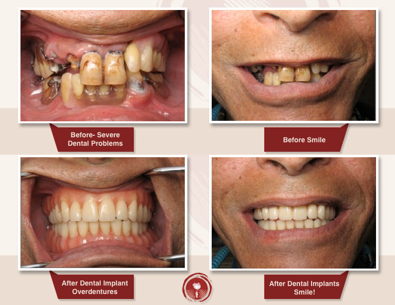 Missing All Missing All Teeth -Full Mouth or One Jaw Implants: Implant Over-Dentures & Conventional Dentures