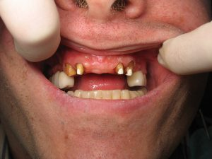 Dental Implants…Why not have a bridge instead?