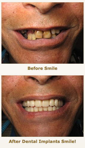 implant over-dentures before and after by Dr. Ramsey Amin, DDS