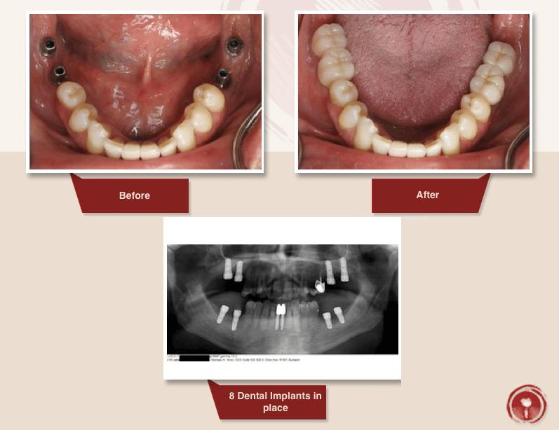dental implants for several missing teeth