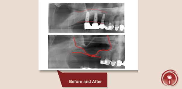 sinus lift bone graft