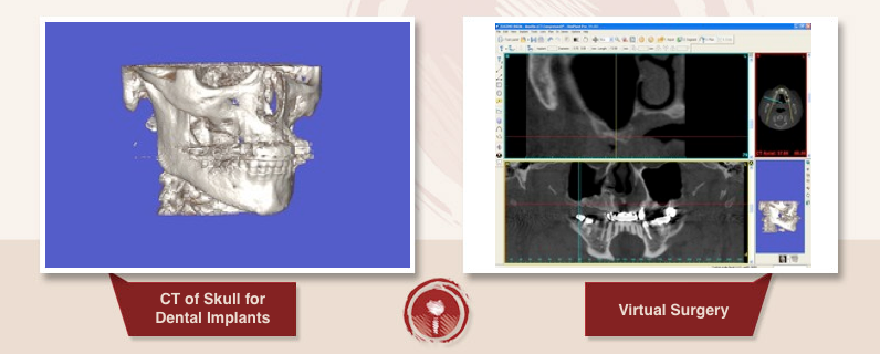 3D Scan: Sinus Lift Bone Graft