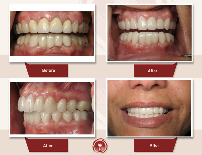 full mouth restoration Burbank