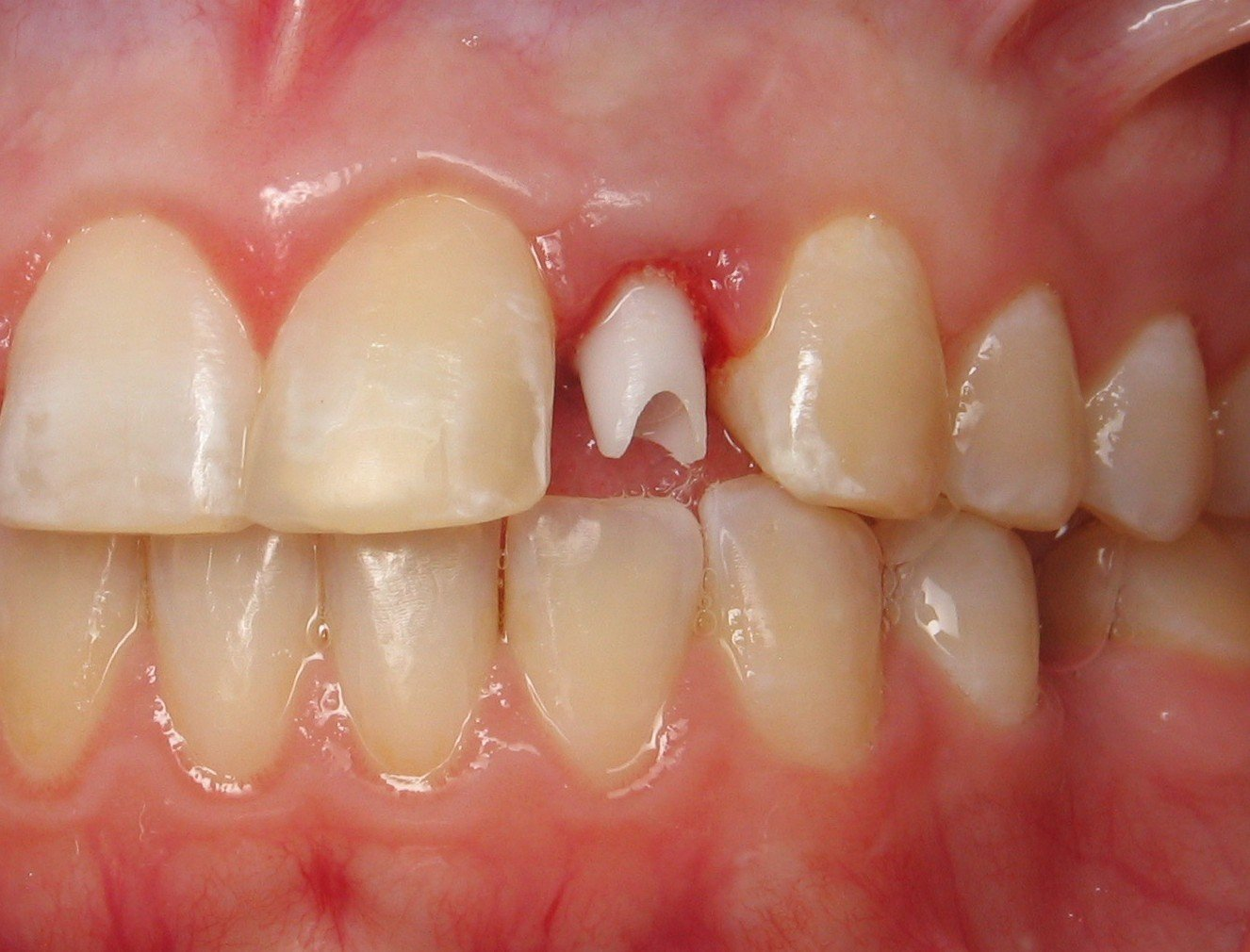 Dental Implants To Replace Baby Teeth Ramsey A Amin Dds