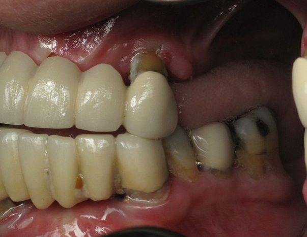 All On 4 Dental Implants Before And After