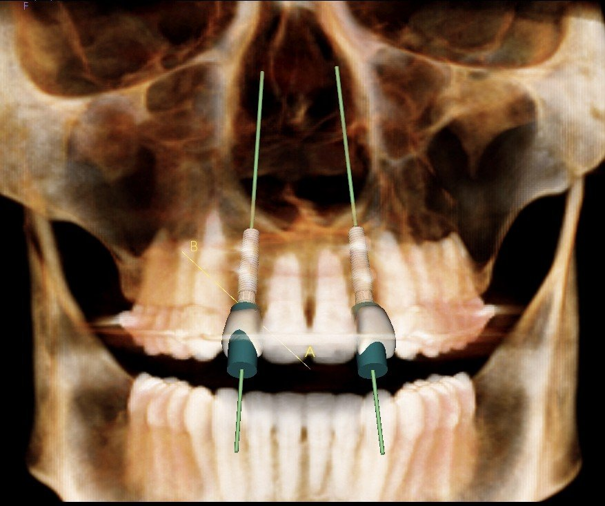 bone grafting before dental implant placement